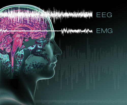 EEG/EMG lines show progression from wakefulness into cataplexy --  when muscle tone suddenly disappears.   ...