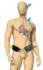 The Jarvik 2000(R) heart includes the blood pump inside the natural heart (white arrow), the internal cable (blue arrow), the behind-the-ear connector (green arrow) the belt worn controller (yellow arrow), the belt worn battery (grey arrow), and the external cables (black).  (PRNewsFoto/JARVIK HEART, Inc.)