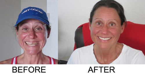 Prosthodontists play a vital role in improving oral health outcomes. Meet Ronnie.  Her before and after tells ...