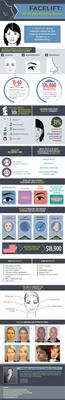 Facelift Infographic.  (PRNewsFoto/Dr. Ramtin Kassir, M.D., F.A.C.S.)