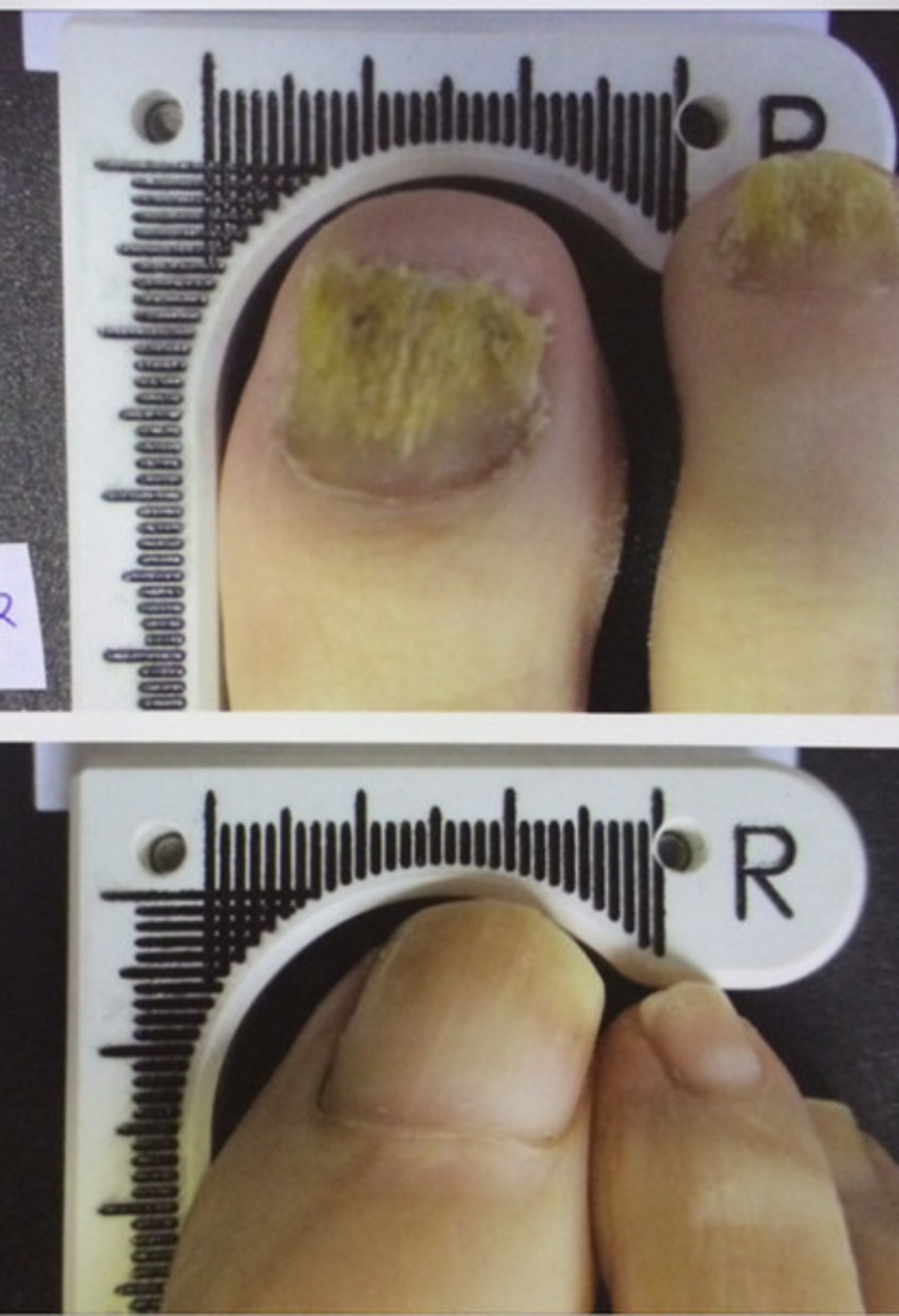 Nail Fungus Sufferers Find Relief In New Laser Treatment