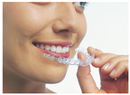 Invisalign's new express teeth straightening system(PRNewsFoto/Invisalign)