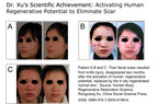 Dr.Xu's Scientific Achievement: Activating Human Regenerative Potential to Eliminate Scar.  (PRNewsFoto/Mebo International)