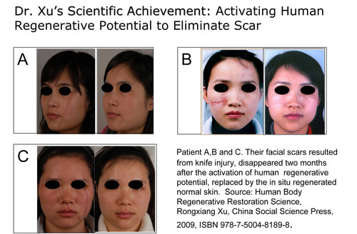 Dr.Xu's Scientific Achievement: Activating Human Regenerative Potential to Eliminate Scar. (PRNewsFoto/Mebo  ...