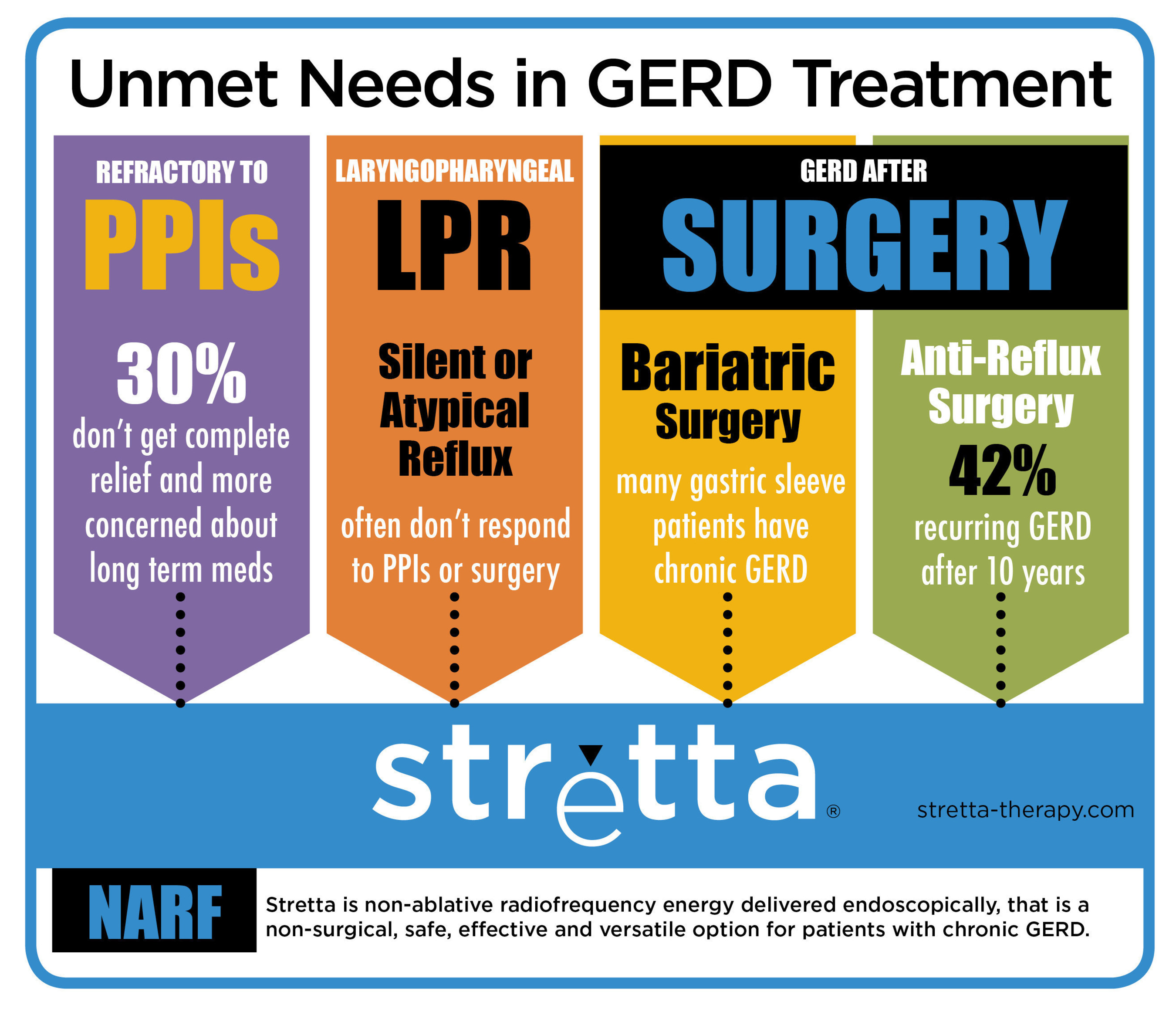Stretta is a versatile treatment that satisfies an unmet need in multiple patient populations with chronic GERD. Stretta therapy is a non-surgical treatment for GERD that uses non-ablative radiofrequency (NARF) energy to improve the structure of the muscle at the junction of the stomach and esophagus, thereby significantly improving GERD symptoms. Stretta fills the treatment gap when PPIs are ineffective and before anti-reflux surgery, and does not preclude future surgery if necessary. Additionally...