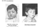 Visual comparison of child with acrodynia (mercury induced disorder) and child with autism.  (PRNewsFoto/SafeMinds)