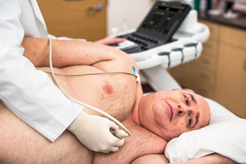 Philips Affiniti with PureWave transducer technology provides excellent image quality on technically difficult patients. (PRNewsFoto/Royal Philips)