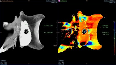 Trix tail shows color - Philips IQon was able to acquire two different X-ray energy levels in a single acquisition. Using IQon, Philips was able to identify and color-highlight bone structure, even with 'remineralized' versions of the original bones.