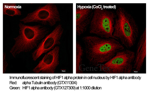 HIF1a antibody (GTX127309).  (PRNewsFoto/GeneTex, Inc.)
