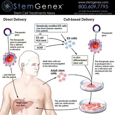 Gene therapy is versatile, allowing us to change and add different target genes. We expect that soon we will be able to perform a detailed genetic analysis of the patient, identifying their exact underlying cause of disease. Then we will be able to tailor the therapy to each individual patient. The illustration above shows the direct and cell based delivery processes when using therapeutic gene.