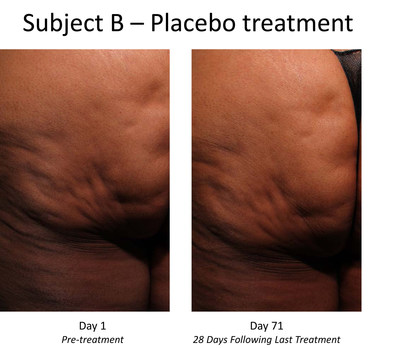 Pre- and post-treatment photos of placebo-treated subject