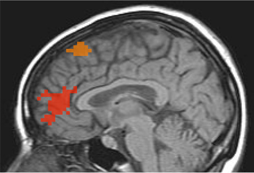 Regional Activation with TNS - Representative areas of the anterior cingulate and prefrontal cortex (red) and frontal gyrus (orange) areas which showed activation are diagrammed. Actual PET images will appear in an upcoming scientific publication.  (PRNewsFoto/NeuroSigma, Inc., UCLA Depression Research Program)