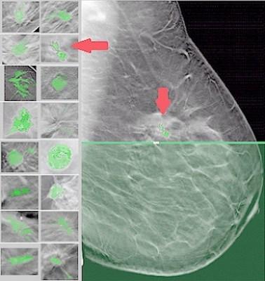 Tissue Profile Scan