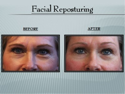 Facial Reposturing Before & After