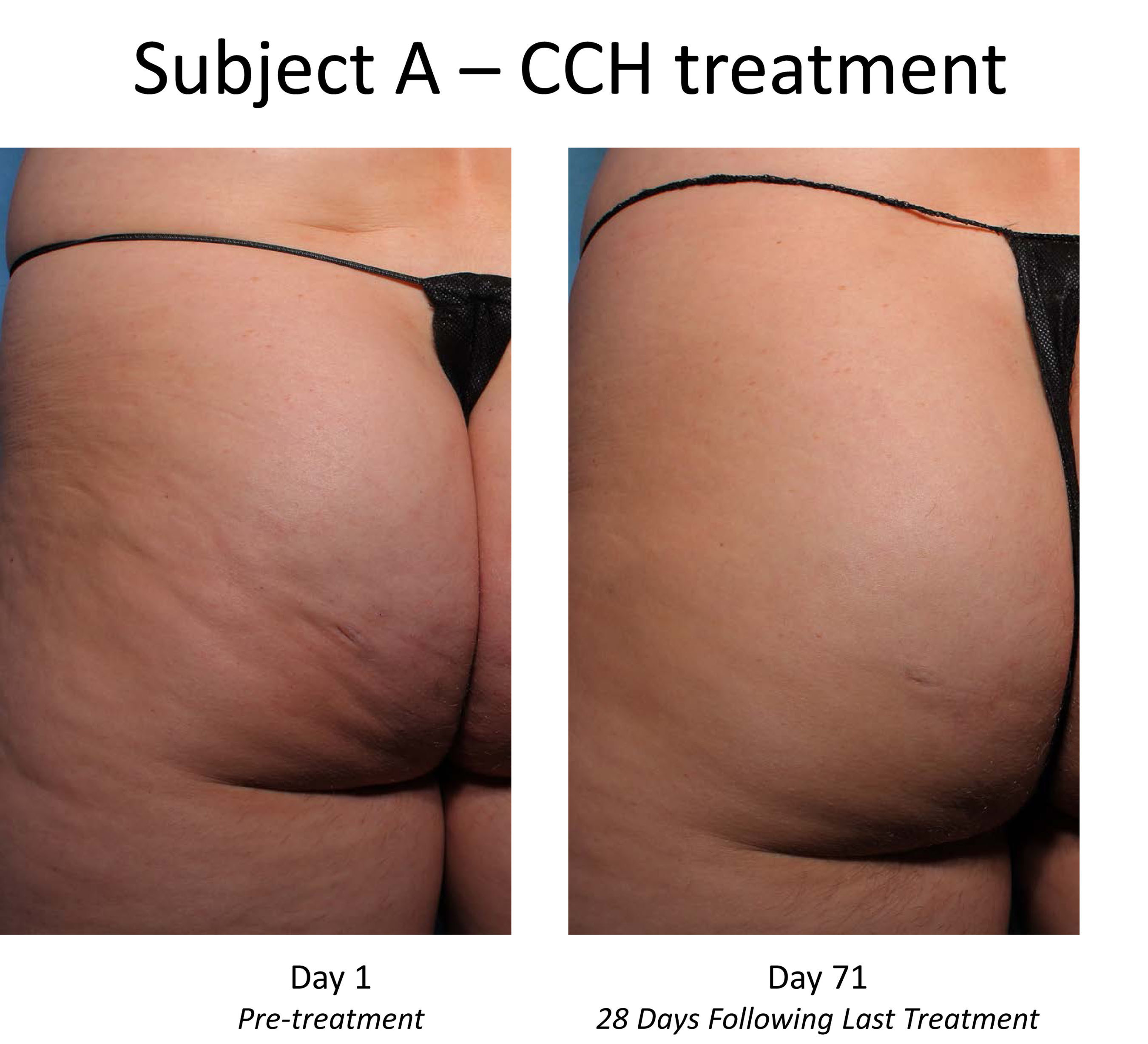 Pre- and post-treatment photos of CCH-treated subject