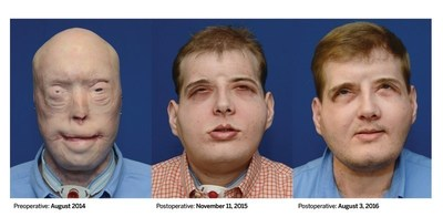 Imagenes que ilustran la notable recuperacion del trasplante de cara realizado por NYU Langone al paciente Patrick Hardison, de agosto de 2014 a agosto de 2016.