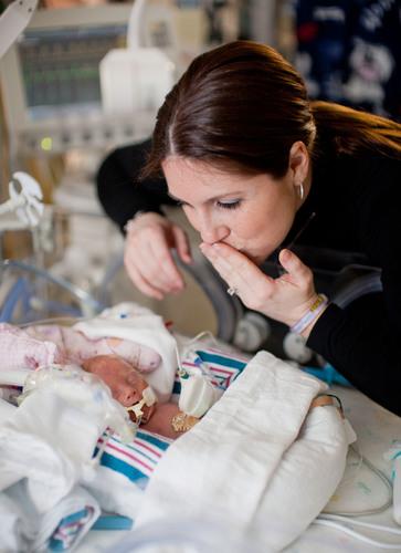 Tasa de Nacimientos Prematuros de los EE.UU. Indica una Mejora de Cinco Años