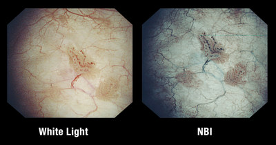 FDA clearance: NBI has visualized Non-Muscle-Invasive Bladder Cancer (NMIBC) lesions in an additional 17 percent of patients, as compared to white light. Blue and green light are strongly absorbed by hemoglobin (blood) and appear darker than normal tissue.