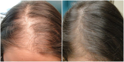 A new, non-invasive technique called PRP (Platelet Rich Plasma Therapy) effectively treats hair loss with zero downtime. This non-surgical treatment starts at $400 per session and simply requires a few injections into the scalp to help encourage regrowth and stimulation of hair follicles, resulting in fuller, thicker hair.