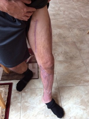 To save his leg, and potentially his life, his surgeon agreed to use the new Necrotizing Fasciitis Paradigm procedure. This new approach involved radical debridement including the fascia, and stopping the progression of the disease with NeutroPhase(R) and the use of a vacuum assisted wound care system. The final step in his recovery involved major skin grafting and after a total of three months Jared was healed and fully recovered (PRNewsFoto/NNFF) (PRNewsFoto/NNFF)