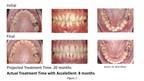 Un éminent orthodontiste annonce un changement de gouttière possible tous les 5 jours avec l'introduction d'AcceleDent dans les protocoles d'alignement
