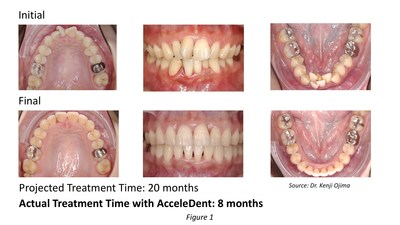 A 26-year-old female, presented with severe anterior crowding, a narrow arch and rotation on tooth #11. Dr. Kenji Ojima's diagnosis and treatment plan revealed that this non-extraction, expansion case was treated with 40 aligners. Standard treatment was projected to be 20 months, but by using AcceleDent, the patient changed trays every five days and treatment was complete in just eight months.
