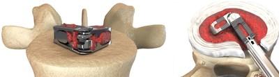 FLXfit(TM) 3D expandable interbody cage (PRNewsFoto/Expanding Orthopedics Inc.)