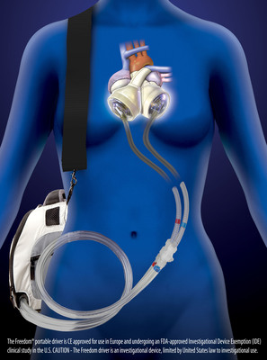 The Freedom(R) portable driver is the world's first wearable power supply for the SynCardia temporary Total Artificial Heart.  (PRNewsFoto/SynCardia Systems, Inc.)