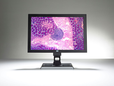 Ventana and Barco revolutionize digital pathology viewing experience with the Barco MDRC-2124.  (PRNewsFoto/Ventana Medical Systems, Inc.)