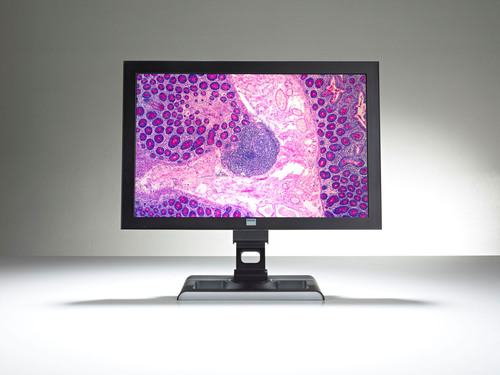 Ventana and Barco revolutionize digital pathology viewing experience with the Barco MDRC-2124.  ...