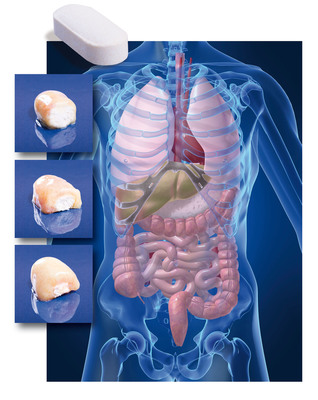 Stomach acids can destroy probiotics before they reach the intestinal tract where they do their good work. BIO-tract(R) tablets protect probiotics and other ingredients from gastric acid, and offer controlled-release to optimize ingredient delivery over time.Here's how it works: When moistened by fluids in the stomach, a protective layer forms to help shield contents from gastric acid and enzymes. As the tablet moves through the gastrointestinal tract, contents are gradually released at rates determined by formulation. Nutraceutix now holds more than 30 international patents for this novel dietary supplement delivery technology. (PRNewsFoto/Nutraceutix) (PRNewsFoto/NUTRACEUTIX)