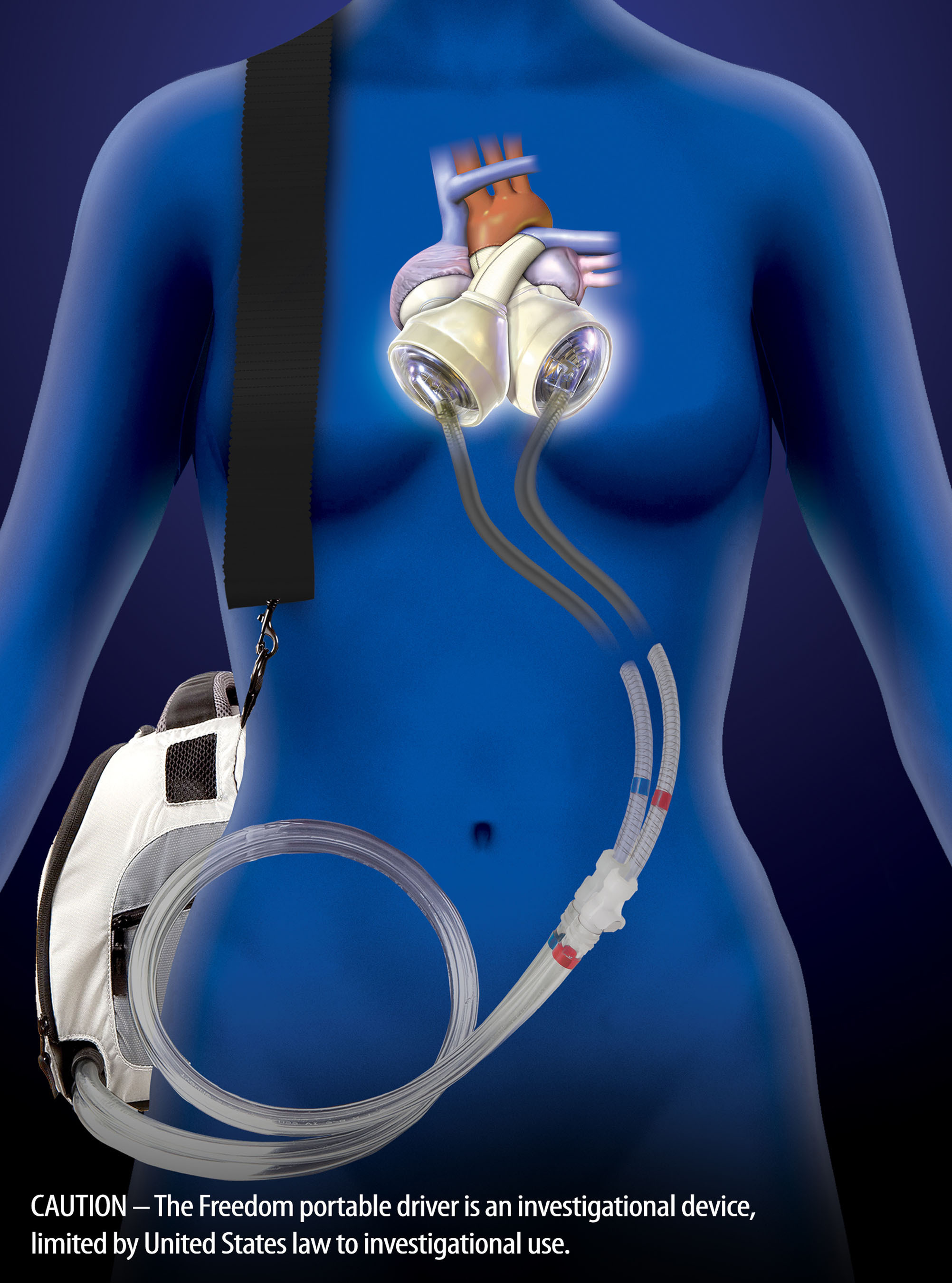 SynCardia's Total Artificial Heart, often powered by the wearable Freedom(R) portable driver, has been used to eliminate the symptoms and source of end-stage biventricular heart failure brought on by many causes, including cardiac tumor and VAD failure. Top heart surgeons shared their cases in a recent SynCardia Systems, Inc. conference.  (PRNewsFoto/SynCardia Systems, Inc.)