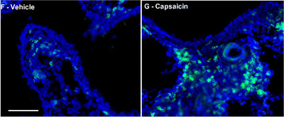 Activation of nociceptors, done for study purposes with a compound called capsaicin, promotes the infiltration of immune cells into the lung (right) as compared with control (left).