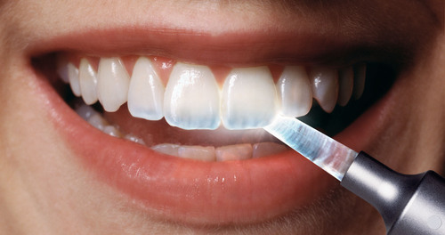 A dentist shines a light on how acid erosion has caused one person's tooth enamel to become transparent* ...