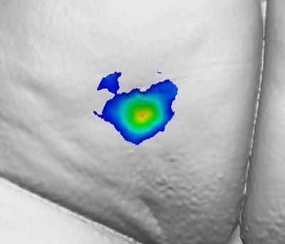 Patient 1227: Improvement in Buttock Dimple Total Volume: 30.6% at Day 30.  (PRNewsFoto/Auxilium Pharmaceuticals, Inc.)