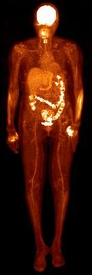 Vereos PET/CT whole body PET scan