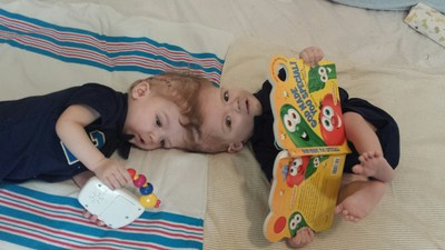 Twin Boys Conjoined At Head Successfully Separated At Children's Hospital At Montefiore After More Than 20 Hours Of Surgery