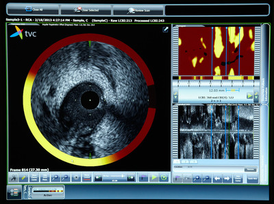 Imaging System Composite.  (PRNewsFoto/Royal Philips)