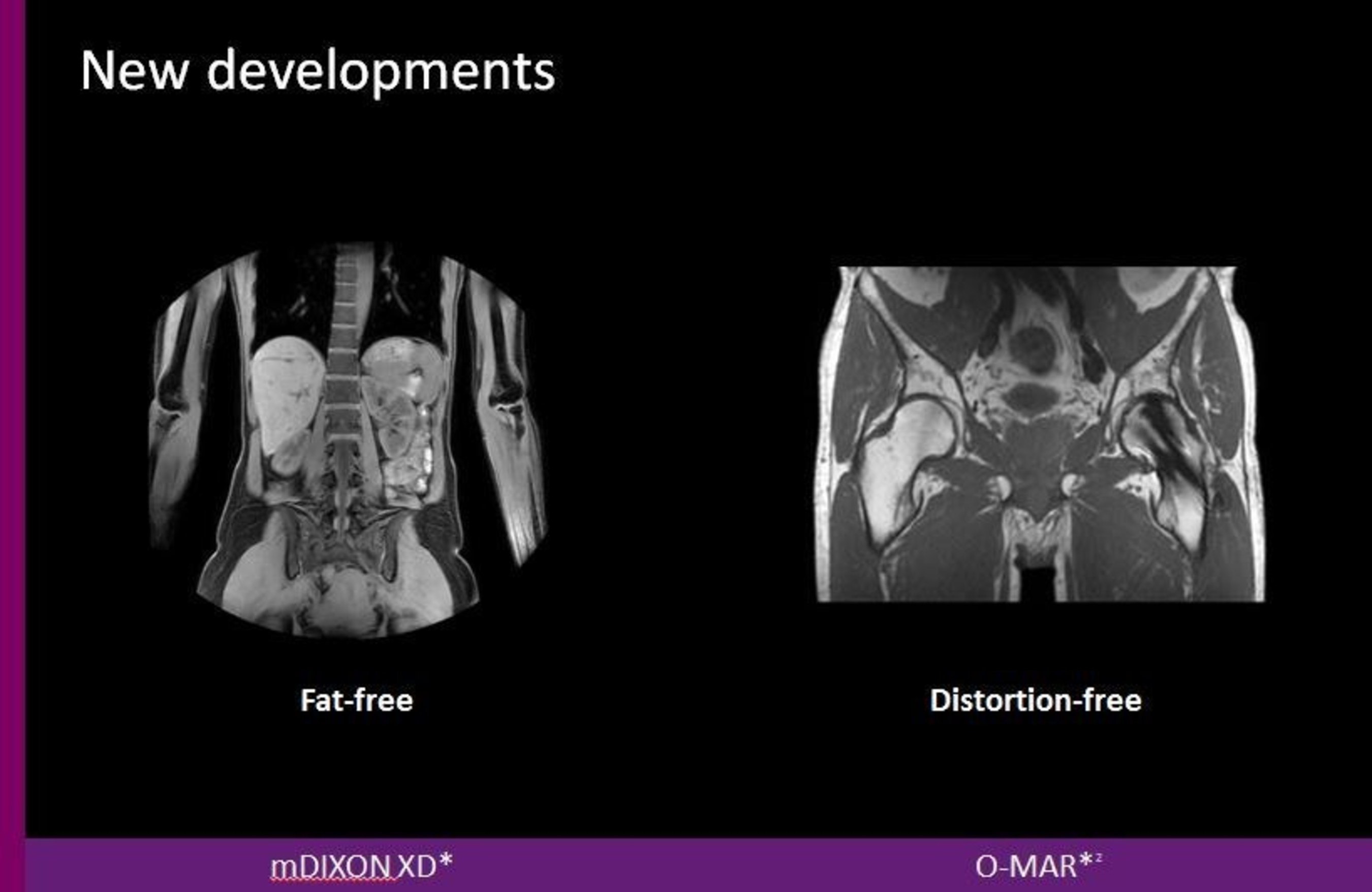 New developments include fat-free and distortion-free imaging.