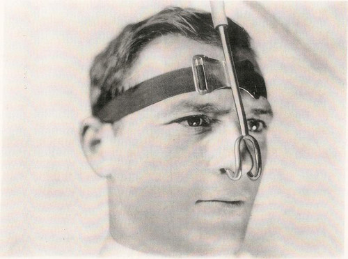 This oxygen cannula from the 1920s is one of the interesting photographs that chronicles the respiratory care ...