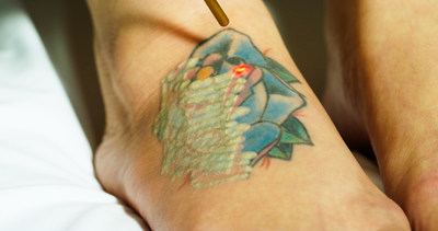 Eraser Clinic offers full-spectrum tattoo removal on the most colorful tattoos