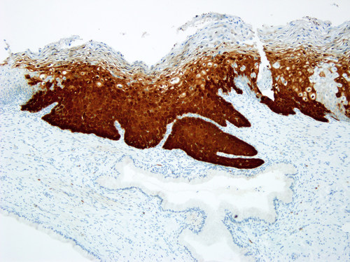 Cervical biopsy stained with the CINtec(R) p16 Histology test. The over-expression of the p16 biomarker in cervical specimens, detected by the CINtec(R) p16 Histology immunohistochemistry test, assists doctors in determining the presence or absence of high-grade cervical disease. (PRNewsFoto/Ventana Medical Systems, Inc.)