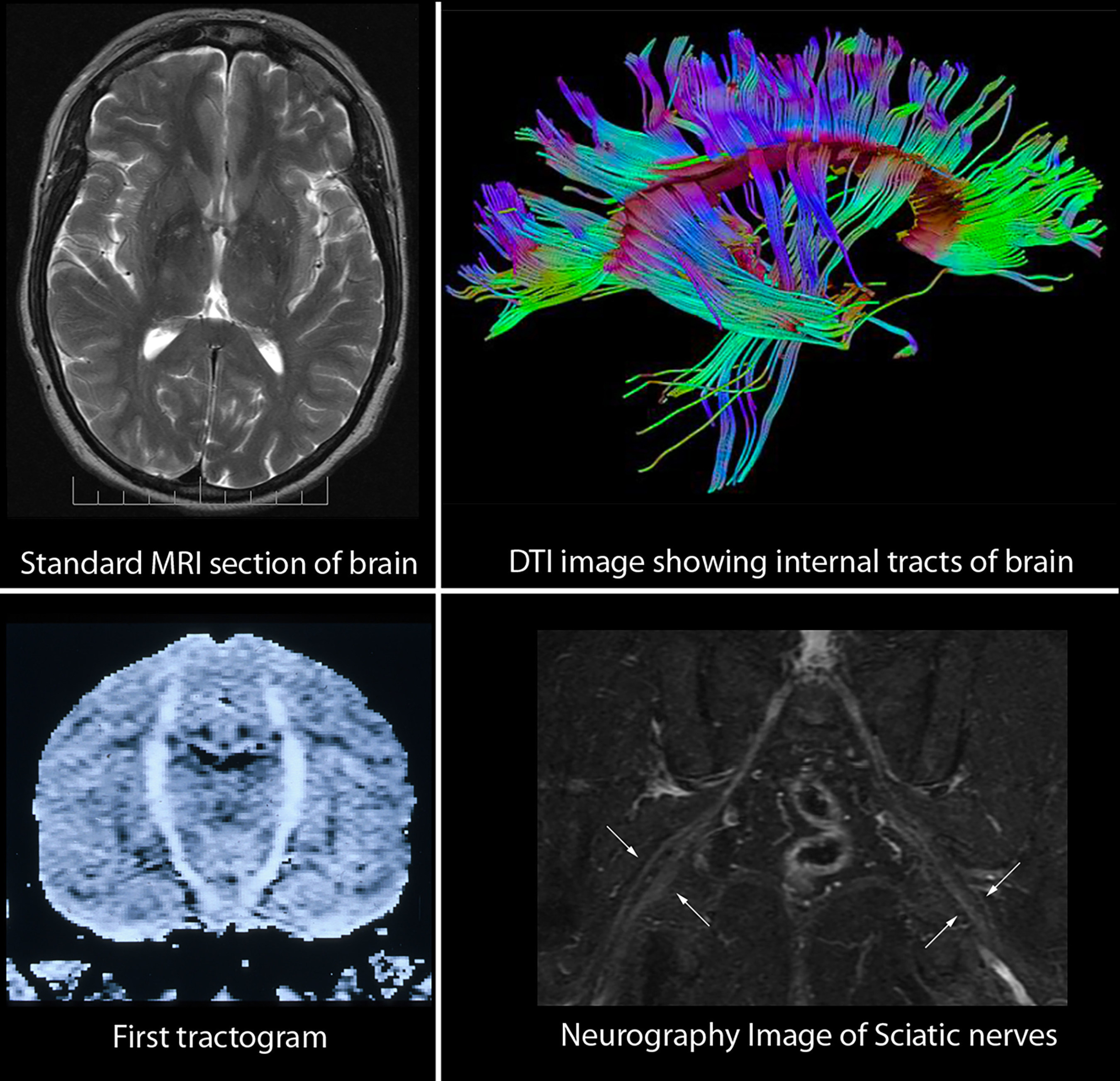 The neurography institute celebrates the 25th anniversary of the comparison of standard brain mri image with the three dimensional internal structure of the brain revealed ccuart Image collections