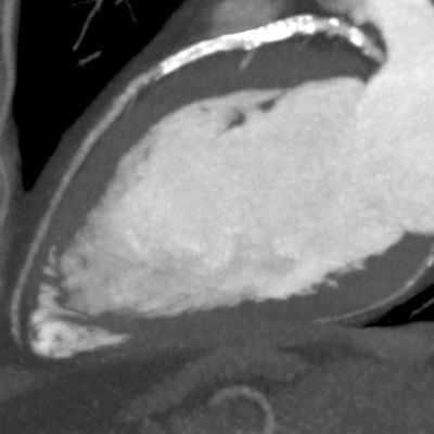 Post contrast - No hemodynamically significant stenosis is seen is the LAD – Courtesy Dr K Kofoed, Rigshospitalet, University of Copenhagen, Denmark (PRNewsFoto/Toshiba Medical Systems Europe)