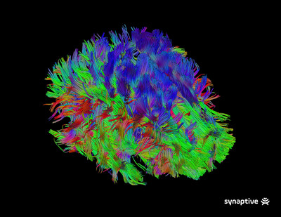 Scanned brain fiber tracks. Courtesy of Synaptive Medical.