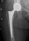 All Metal Hip Implant.  (PRNewsFoto/US Drug Watchdog)