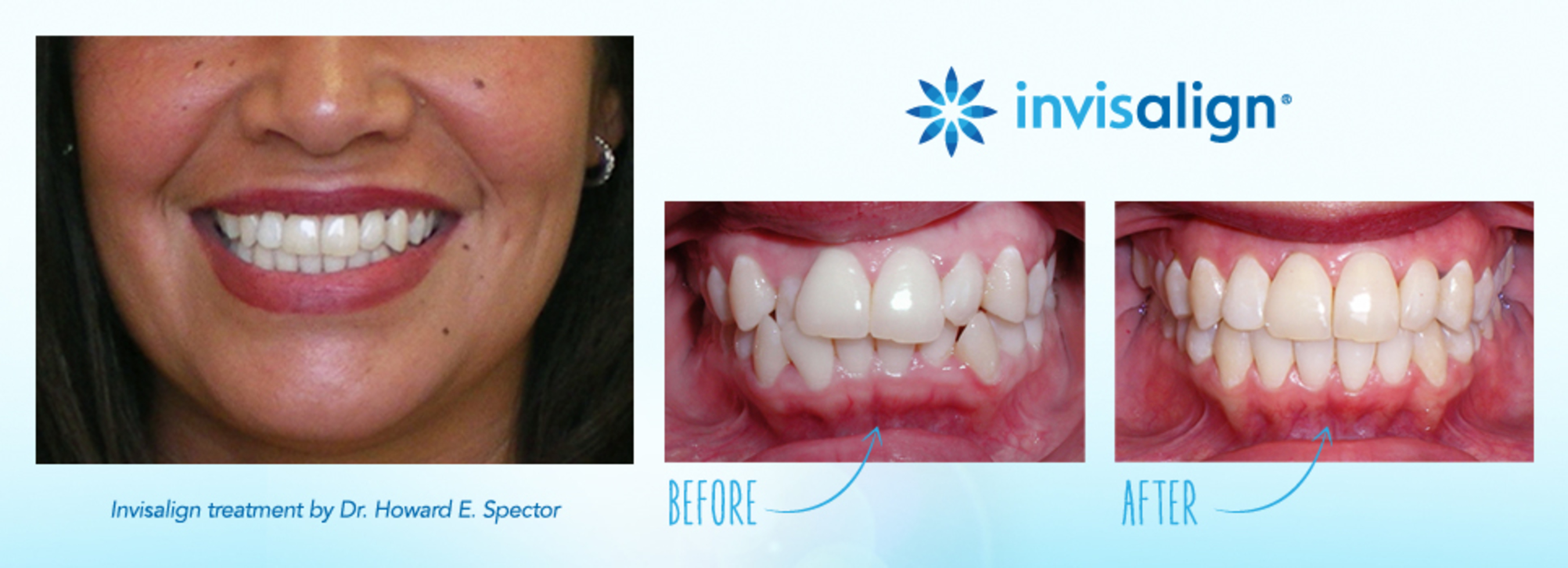 Invisalign treatment by Dr. Howard E. Spector - Treatment duration: 16 months - Disclaimer: The images are presented for reference purposes only and are not intended to represent the actual results a future Invisalign patient will achieve. Treatment times and results will vary by patient. (PRNewsFoto/Invisalign)