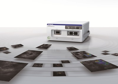 EU-ME2 brings superb clarity to EUS and EBUS procedures, supporting better detection and characterization of lesions in the gastrointestinal tract and airways. (PRNewsFoto/Olympus)