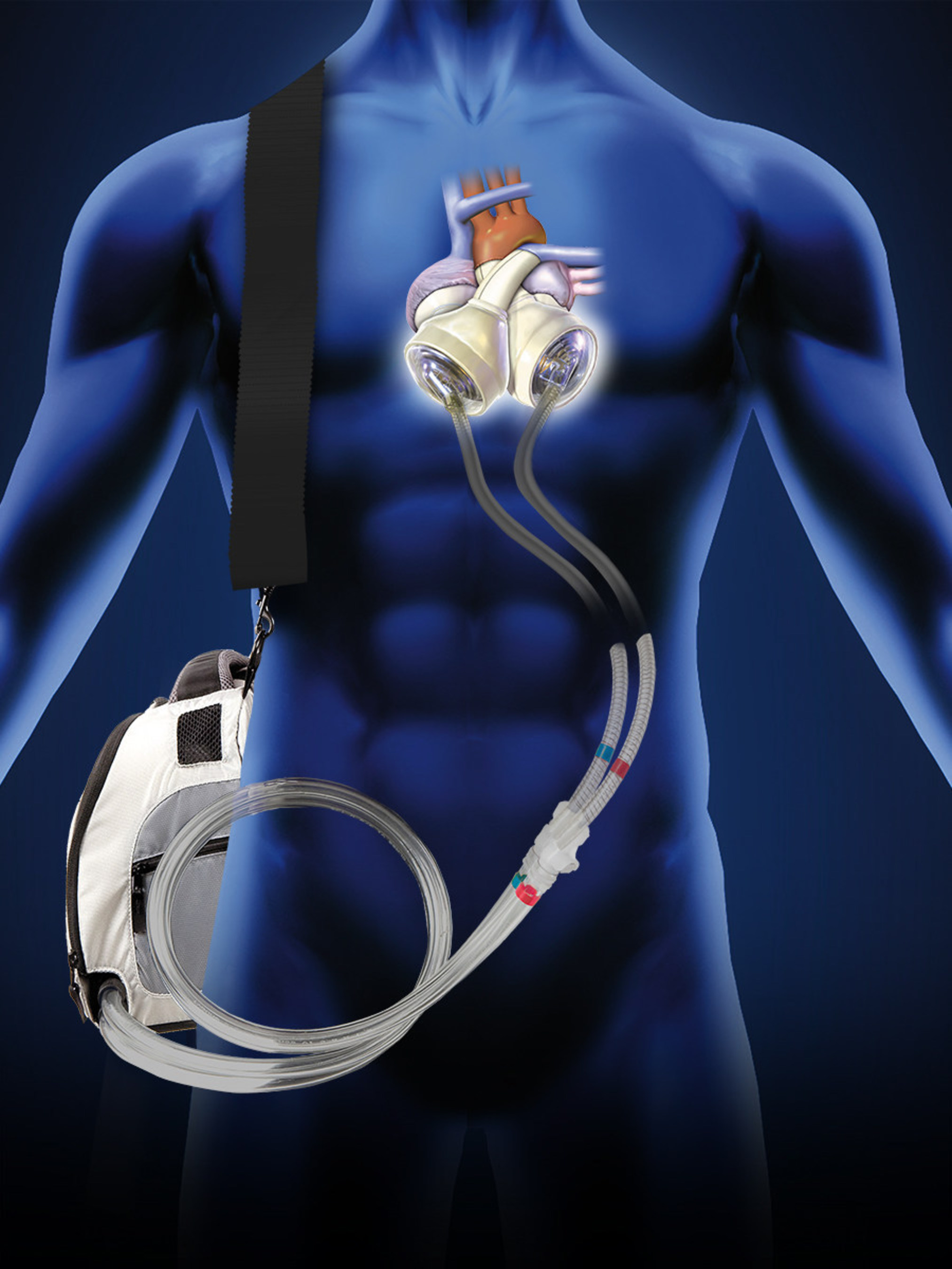 Brothers Stan and Dominique Larkin both received the SynCardia Total Artificial Heart to save them from life-threatening genetic heart disease. One is home with his donor heart; the other is home with his SynCardia Heart waiting for his donor heart.