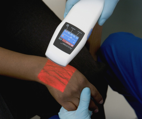 Fenwal Named Exclusive Provider of AccuVein's Award-Winning Vein Illumination Device for Blood and